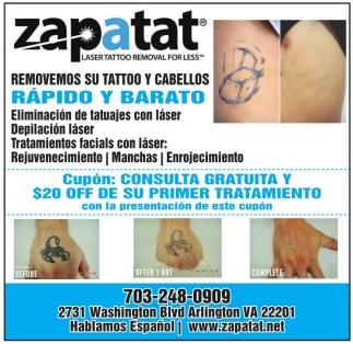 Removemos su Tattoo y Cabellos Rapido y Barato